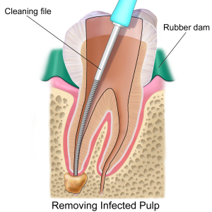 Blausen_0774_RootCanal.png