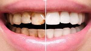Dental-Veneers-1280x720-1.jpg