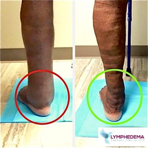 Lymphedema_Clinic_Houston_before_and_afer_(1).jpg