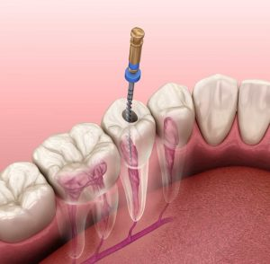 advantages-of-root-canal-treatment.jpg
