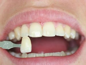 dental-veneers-arizona.jpg